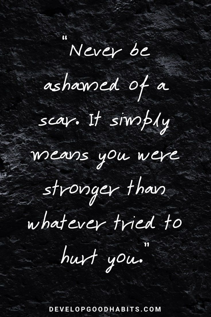 "Good Quotes About Strength and Love – ""Never be ashamed of a scar. It…"